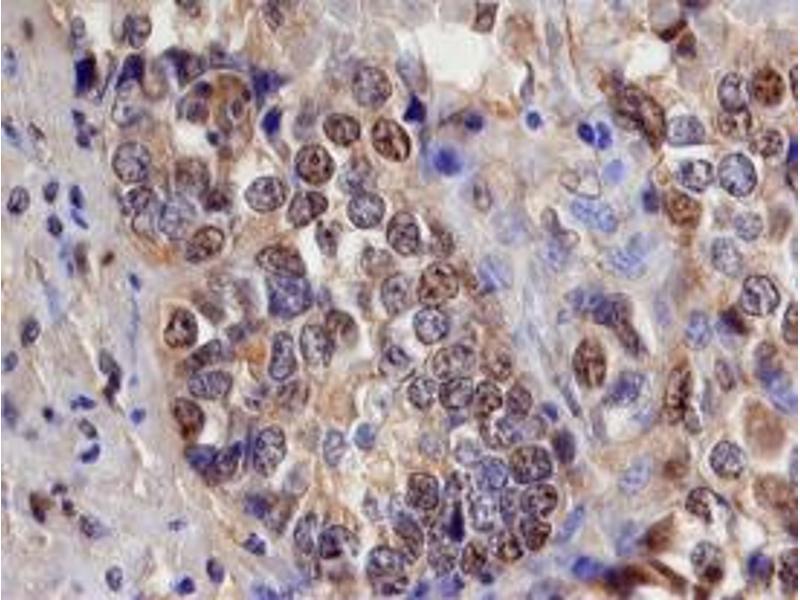 Immunohistochemistry (IHC) image for anti-SMAD, Mothers Against DPP Homolog 3 (SMAD3) (AA 2-230) antibody (ABIN4899431)