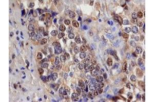 Immunohistochemistry (IHC) image for anti-SMAD, Mothers Against DPP Homolog 3 (SMAD3) (AA 2-230) antibody (ABIN4899431)