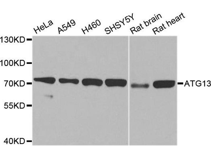 Western Blotting (WB) image for anti-Autophagy Related 13 (ATG13) antibody (ABIN1871135)