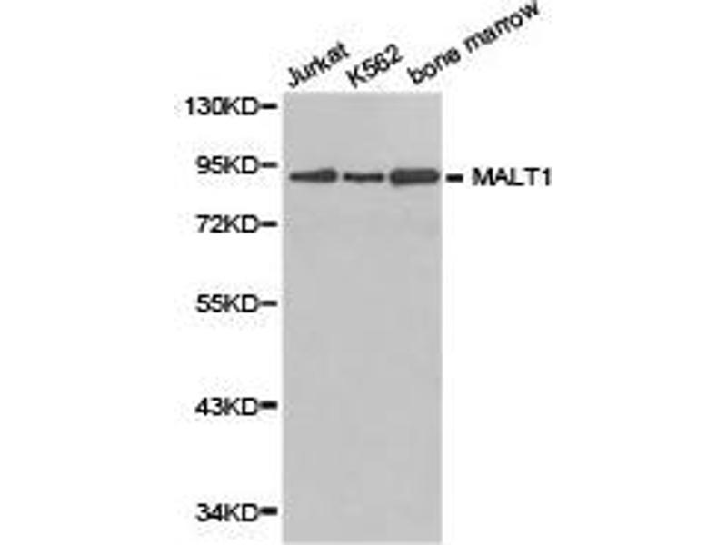 Western Blotting (WB) image for anti-MALT1 antibody (Mucosa Associated Lymphoid Tissue Lymphoma Translocation Gene 1) (ABIN1873591)