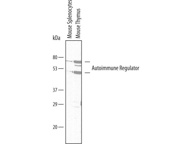 Western Blotting (WB) image for anti-Autoimmune Regulator (AIRE) (AA 476-552) antibody (ABIN4900373)