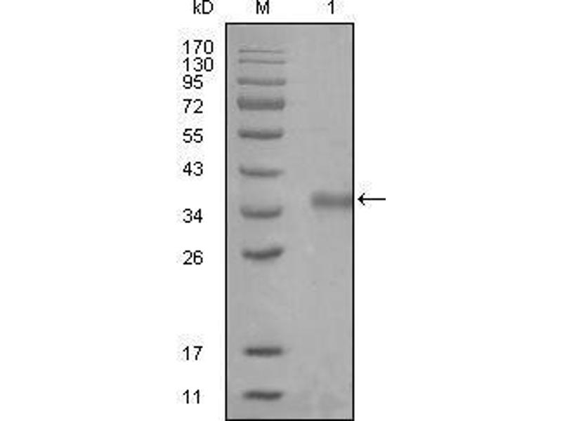 Western Blotting (WB) image for anti-Nuclear Receptor Co-Repressor 1 (NCOR1) (AA 1-192) antibody (ABIN969310)