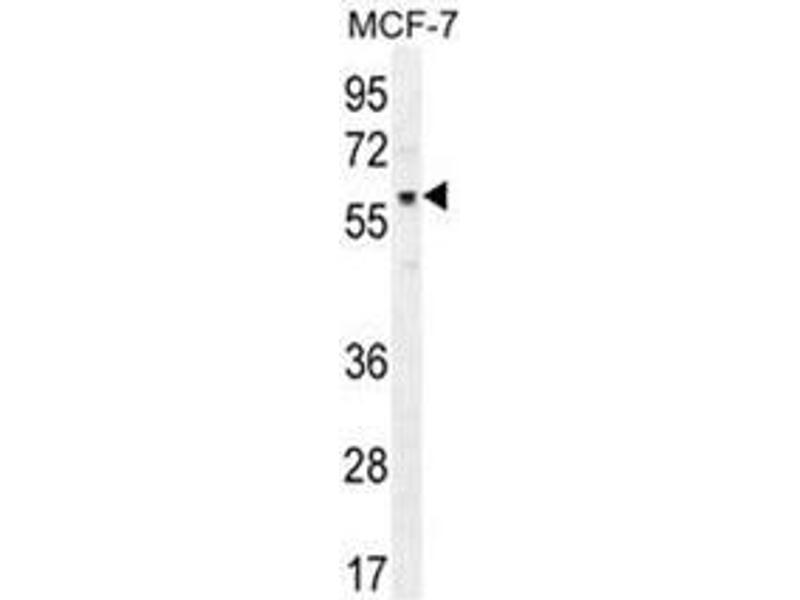Western Blotting (WB) image for anti-V-Akt Murine Thymoma Viral Oncogene Homolog 1 (AKT1) (C-Term) antibody (ABIN950329)