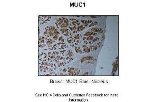 Image no. 5 for anti-Mucin 1, Cell Surface Associated (MUC1) (C-Term) antibody (ABIN2776819)