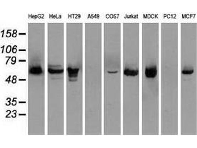 Western Blotting (WB) image for anti-Checkpoint Kinase 2 (CHEK2) antibody (ABIN2452424)