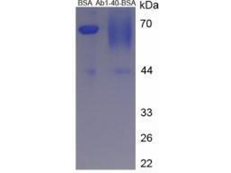 image for Amyloid beta 40 (Abeta 40) peptide (BSA) (ABIN5665937)
