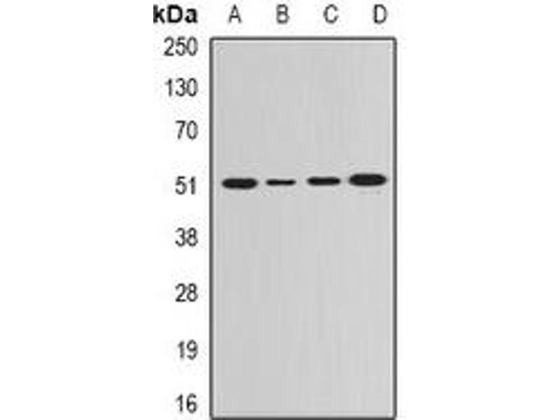 Western Blotting (WB) image for anti-Guanine Deaminase (GDA) antibody (ABIN2966662)
