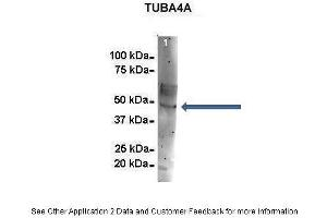 Immunoprecipitation (IP) image for anti-Tubulin, alpha 4a (TUBA4A) (Middle Region) antibody (ABIN2778649)