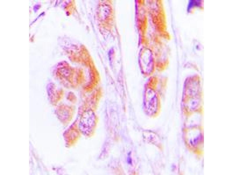 Immunohistochemistry (IHC) image for anti-Caspase 7 antibody (Caspase 7, Apoptosis-Related Cysteine Peptidase) (Center) (ABIN2705691)