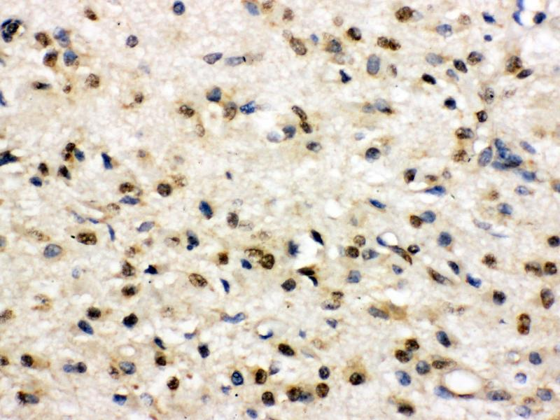 Immunohistochemistry (Paraffin-embedded Sections) (IHC (p)) image for anti-Discs, Large Homolog 4 (Drosophila) (DLG4) (AA 581-724) antibody (ABIN3043563)