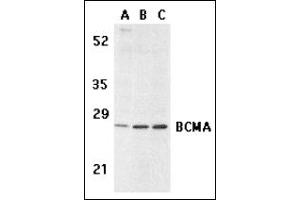 Image no. 3 for anti-Tumor Necrosis Factor Receptor Superfamily, Member 17 (TNFRSF17) (C-Term) antibody (ABIN372927)
