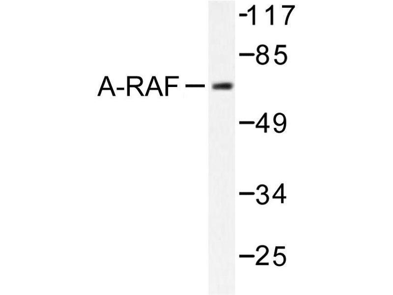 image for anti-ARAF antibody (V-Raf Murine Sarcoma 3611 Viral Oncogene Homolog) (ABIN271994)