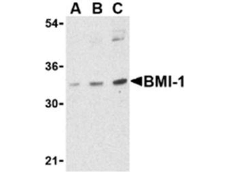 image for anti-BMI1 antibody (BMI1 Polycomb Ring Finger Oncogene) (Middle Region) (ABIN318769)