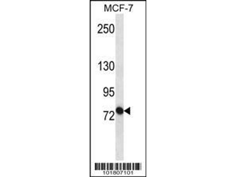 Western Blotting (WB) image for anti-ATP-Binding Cassette, Sub-Family B (MDR/TAP), Member 10 (ABCB10) (AA 1-27), (N-Term) antibody (ABIN652180)