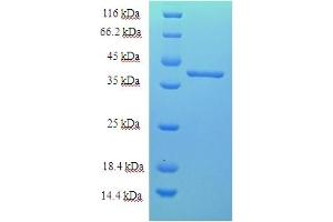 Image no. 1 for Chromosome 18 Open Reading Frame 10 (C18orf10) (AA 20-359) protein (His tag) (ABIN5712722)