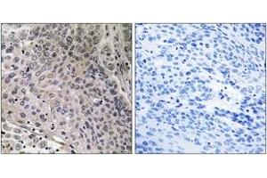 Image no. 1 for anti-Prostaglandin E Synthase 3 (Cytosolic) (PTGES3) (AA 79-128) antibody (ABIN2888705)