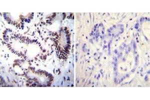 Immunohistochemistry (Paraffin-embedded Sections) (IHC (p)) image for anti-NFAT1 antibody (Nuclear Factor of Activated T-Cells, Cytoplasmic, Calcineurin-Dependent 2) (AA 51-69) (ABIN152663)