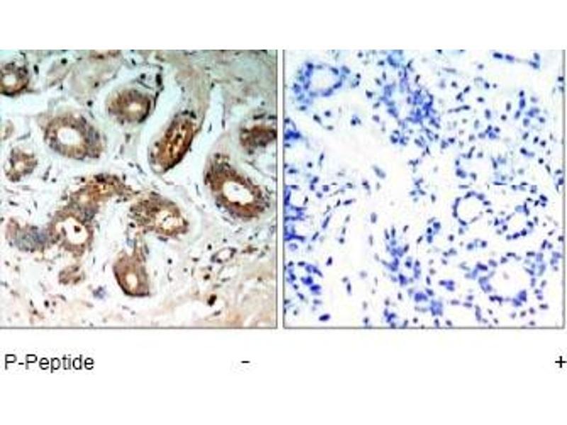 Immunohistochemistry (IHC) image for anti-YWHAZ antibody (tyrosine 3-Monooxygenase/tryptophan 5-Monooxygenase Activation Protein, zeta Polypeptide) (Ser58) (ABIN257130)