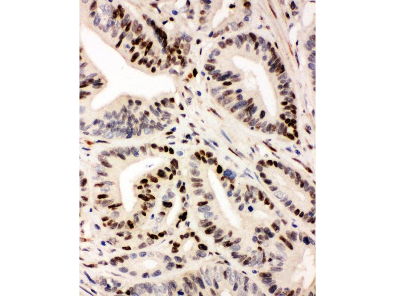 Immunohistochemistry (IHC) image for anti-Interferon Regulatory Factor 1 (IRF1) (AA 169-183), (Middle Region) antibody (ABIN3042646)