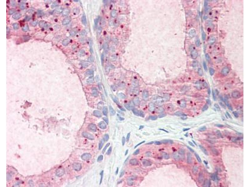 image for anti-Radial Spoke Head 1 Homolog (Chlamydomonas) (RSPH1) (AA 154-168) antibody (ABIN343046)