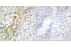 Immunohistochemistry (IHC) image for anti-Casein Kinase 1, alpha 1 (CSNK1A1) (Internal Region) antibody (ABIN1849386)