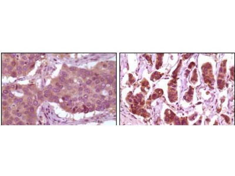 Immunohistochemistry (IHC) image for anti-Mitogen-Activated Protein Kinase 1 (MAPK1) antibody (ABIN2869212)