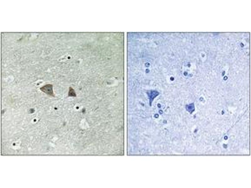 Immunohistochemistry (IHC) image for anti-Ribosomal Protein S6 Kinase, 70kDa, Polypeptide 1 (RPS6KB1) (AA 393-442) antibody (ABIN1533098)