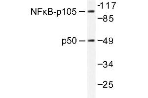 image for anti-Nuclear Factor of kappa Light Polypeptide Gene Enhancer in B-Cells 1 (NFKB1) antibody (ABIN271742)