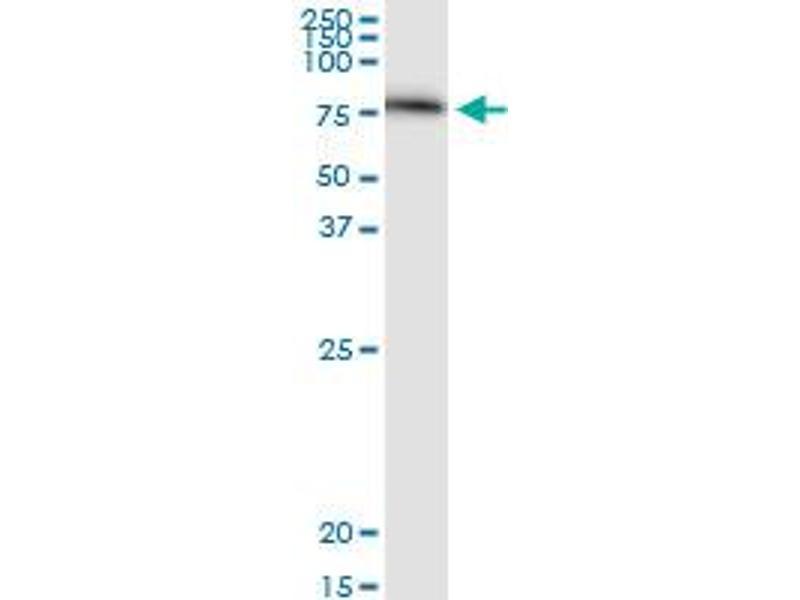 Western Blotting (WB) image for anti-SERPING1 antibody (Serpin Peptidase Inhibitor, Clade G (C1 Inhibitor), Member 1) (AA 1-500) (ABIN513846)