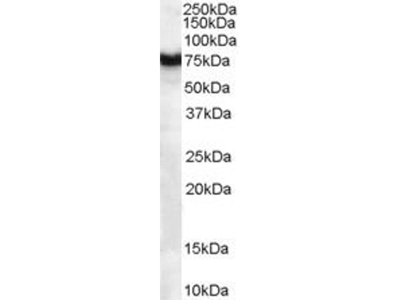 Western Blotting (WB) image for anti-FZD8 antibody (Frizzled Family Receptor 8) (ABIN2435843)