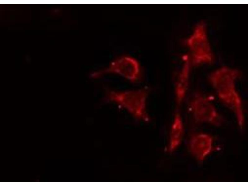 Immunofluorescence (fixed cells) (IF/ICC) image for anti-ARP3 Actin-Related Protein 3 Homolog (Yeast) (ACTR3) antibody (ABIN6259757)