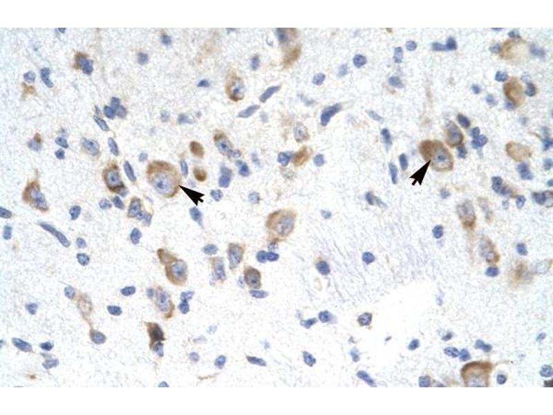 Immunohistochemistry (IHC) image for anti-General Transcription Factor IIF, Polypeptide 2, 30kDa (GTF2F2) (Middle Region) antibody (ABIN1107468)