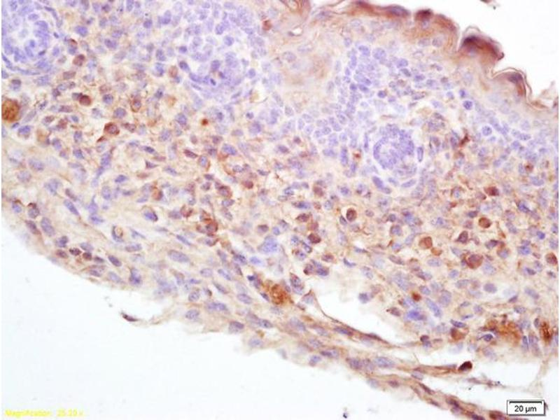 Immunohistochemistry (IHC) image for anti-Dopa Decarboxylase (Aromatic L-Amino Acid Decarboxylase) (DDC) (AA 219-248) antibody (ABIN725945)
