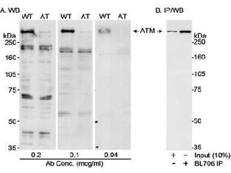 Western Blotting (WB) image for anti-ATM antibody (Ataxia Telangiectasia Mutated) (AA 2550-2600) (ABIN152102)