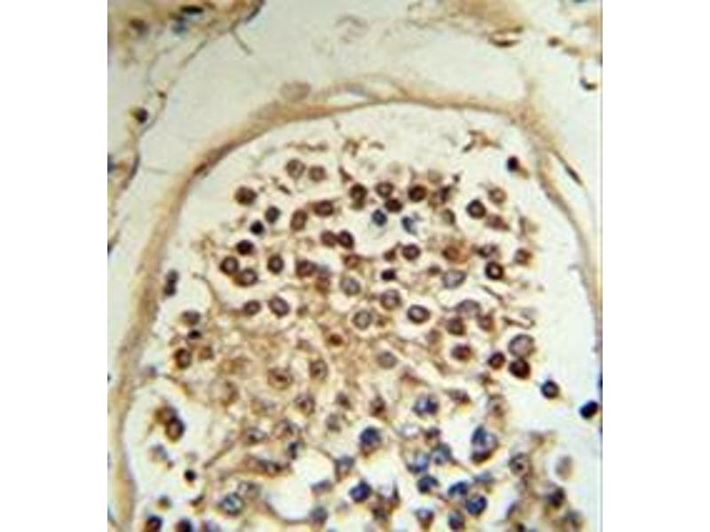 Immunohistochemistry (Paraffin-embedded Sections) (IHC (p)) image for anti-MOB Kinase Activator 2 (MOB2) (AA 11-41), (N-Term) antibody (ABIN953472)