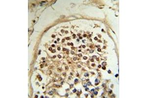 Immunohistochemistry (Paraffin-embedded Sections) (IHC (p)) image for anti-MOB2 antibody (MOB Kinase Activator 2) (AA 11-41) (ABIN953472)