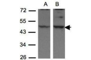 Western Blotting (WB) image for anti-Drebrin-Like (DBNL) (N-Term) antibody (ABIN441067)