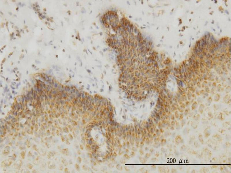 Immunostaining (ISt) image for anti-Insulin Receptor-Related Receptor (INSRR) (AA 651-760), (partial) antibody (ABIN561505)
