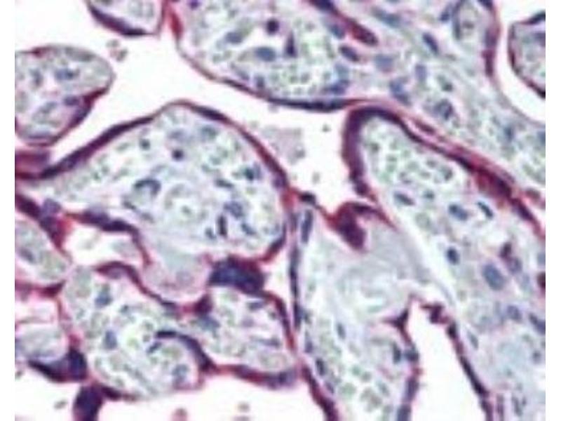 Immunohistochemistry (Paraffin-embedded Sections) (IHC (p)) image for anti-Heat Shock Protein 90kDa beta (Grp94), Member 1 (HSP90B1) (Internal Region) antibody (ABIN4315469)