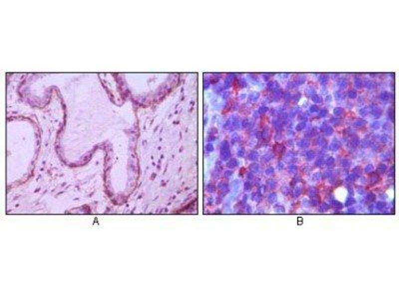 Immunohistochemistry (Paraffin-embedded Sections) (IHC (p)) image for anti-Membrane Metallo-Endopeptidase (MME) antibody (ABIN4338594)