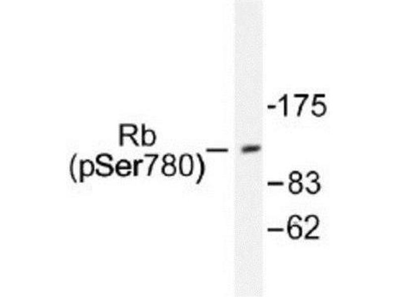 Western Blotting (WB) image for anti-Retinoblastoma 1 抗体 (RB1) (ABIN4349470)