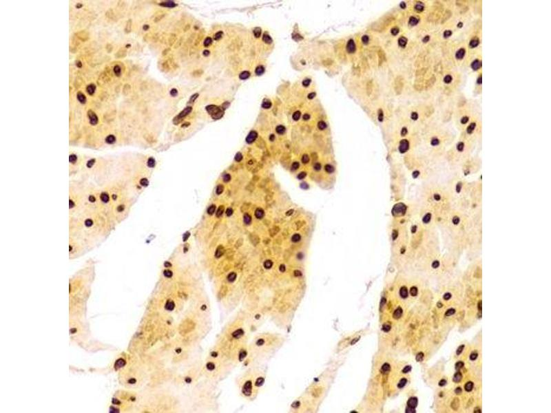 Immunohistochemistry (Paraffin-embedded Sections) (IHC (p)) image for anti-Lamin A/C (LMNA) antibody (ABIN3020785)