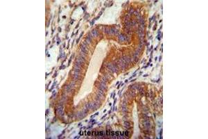 Image no. 2 for anti-Chromosome 18 Open Reading Frame 10 (C18orf10) (AA 116-145), (Middle Region) antibody (ABIN950796)