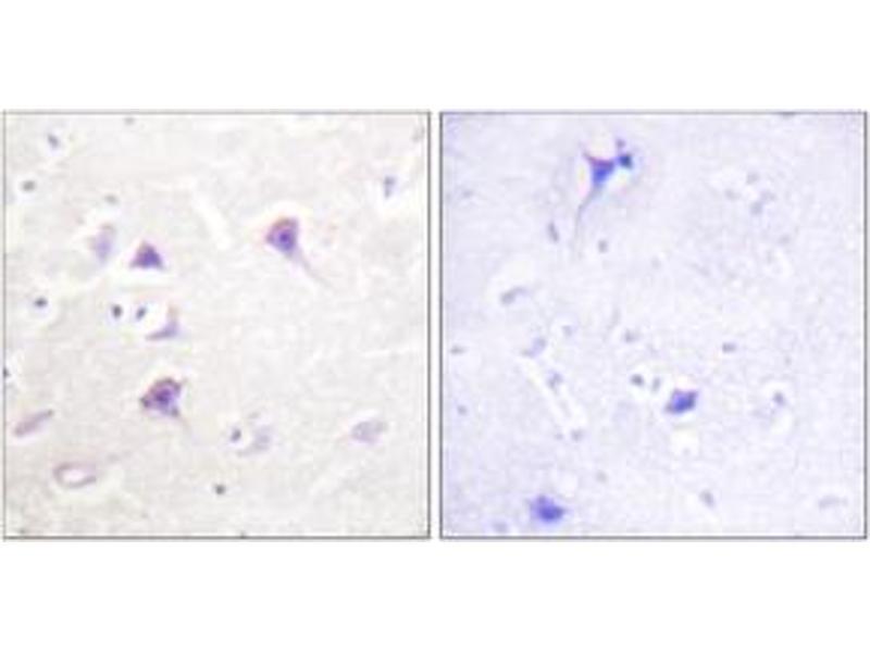 Immunohistochemistry (IHC) image for anti-V-Erb-A erythroblastic Leukemia Viral Oncogene Homolog 4 (Avian) (ERBB4) (AA 1250-1299) antibody (ABIN1532628)