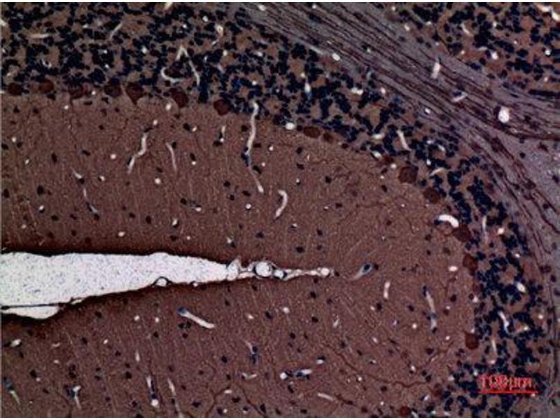 Immunohistochemistry (IHC) image for anti-Protein Kinase C, gamma (PRKCG) (Internal Region) antibody (ABIN3187692)