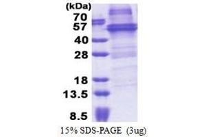 Image no. 1 for RNA-Binding Protein NOB1 (NOB1) (AA 1-412) protein (His tag) (ABIN5853244)