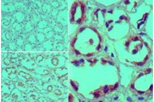 Immunohistochemistry (Paraffin-embedded Sections) (IHC (p)) image for anti-Furin (Paired Basic Amino Acid Cleaving Enzyme) (FURIN) antibody (ABIN4312813)