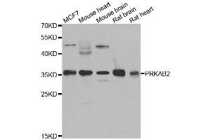 Image no. 2 for anti-Protein Kinase, AMP-Activated, beta 2 Non-Catalytic Subunit (PRKAB2) antibody (ABIN6146179)