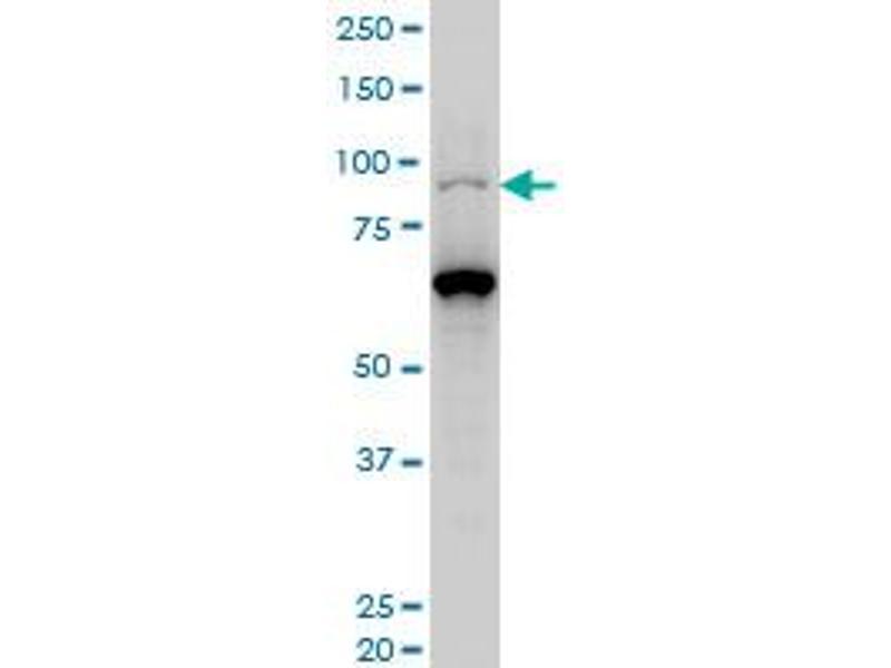 Western Blotting (WB) image for anti-KAT2B antibody (K(lysine) Acetyltransferase 2B) (AA 353-452) (ABIN522305)