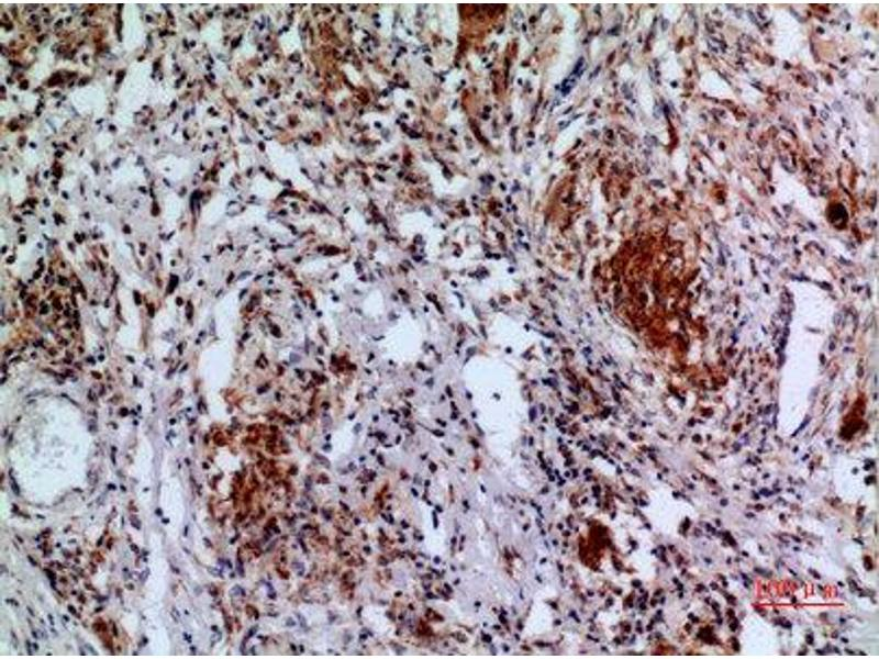 Immunohistochemistry (IHC) image for anti-APAF1 antibody (Apoptotic Peptidase Activating Factor 1) (Internal Region) (ABIN3187886)